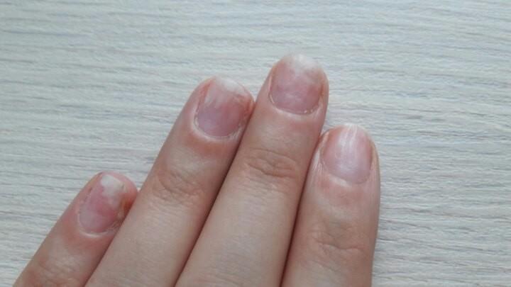 Фото дистрофии ногтей