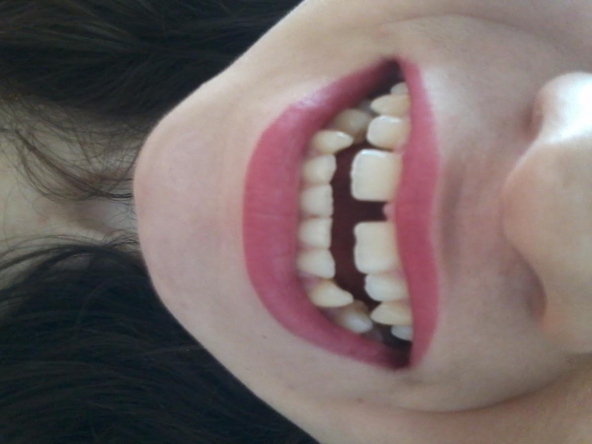 Как из щели между зубами сделать 497