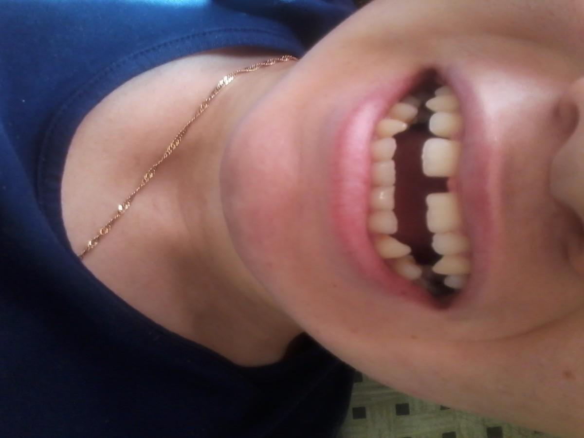 Как из щели между зубами сделать 709