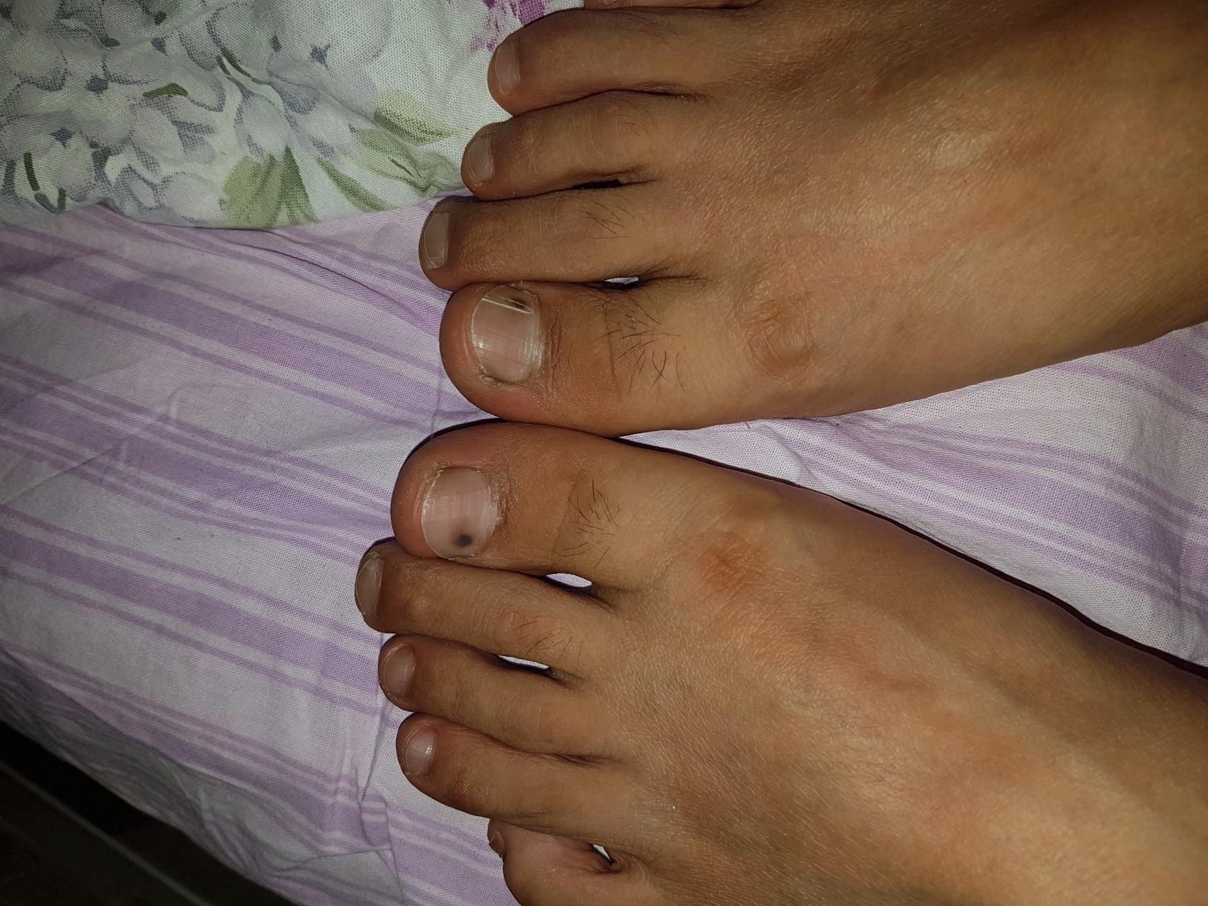 Темные пятна на ногтях ног что это