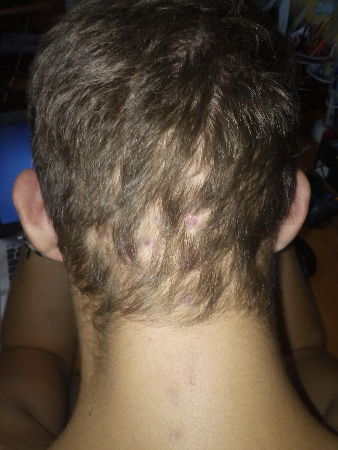Использование для лечебных манипуляций при злокачественных новообразованиях медикаментов из подгруппы цитостатиков и обуславливает выпадение волос.