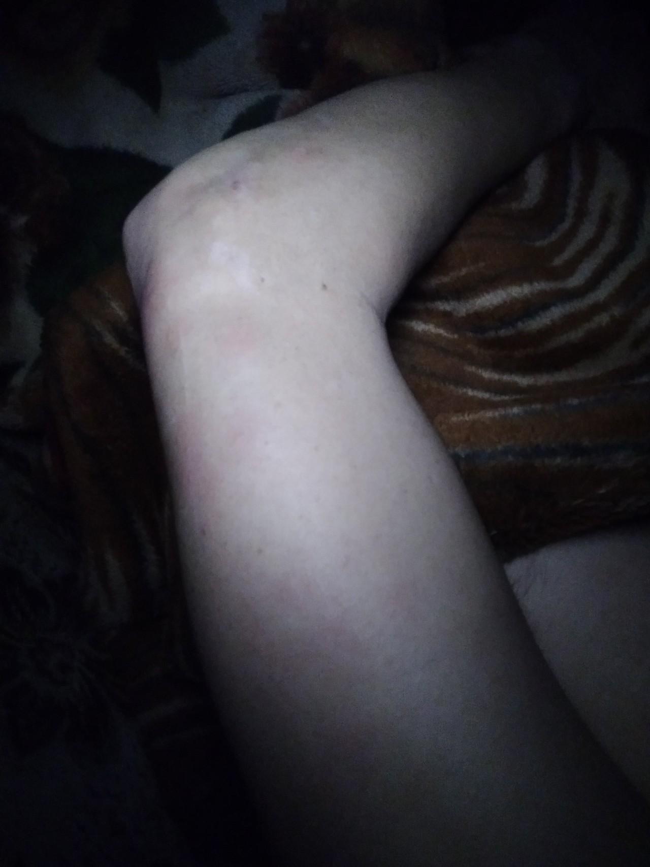 Коричневое пятно после секса такое