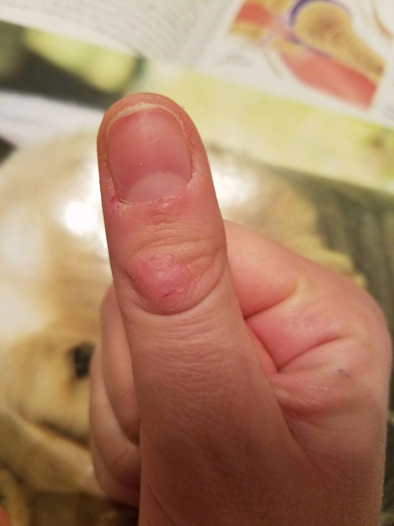 дачный шишка на фаланге пальца руки нам
