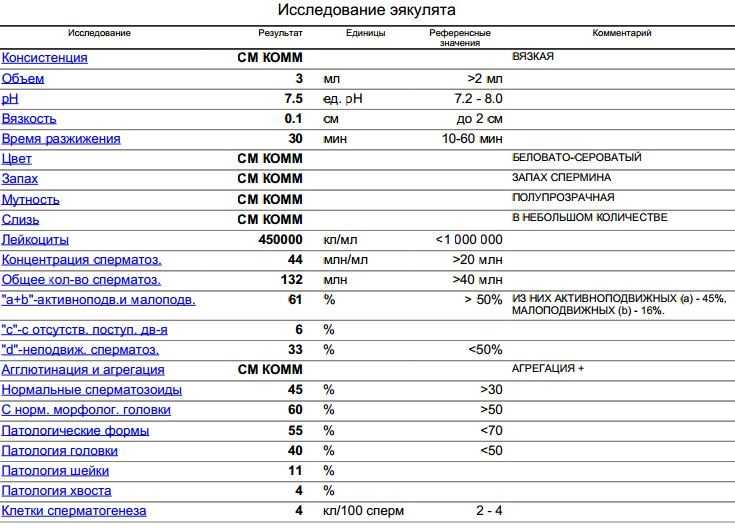 spermatozoidi-s-patologiey-hvosta