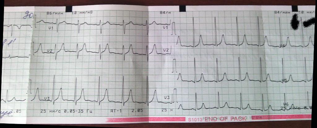 Как самостоятельно прочитать кардиограмму - Veproekt.ru
