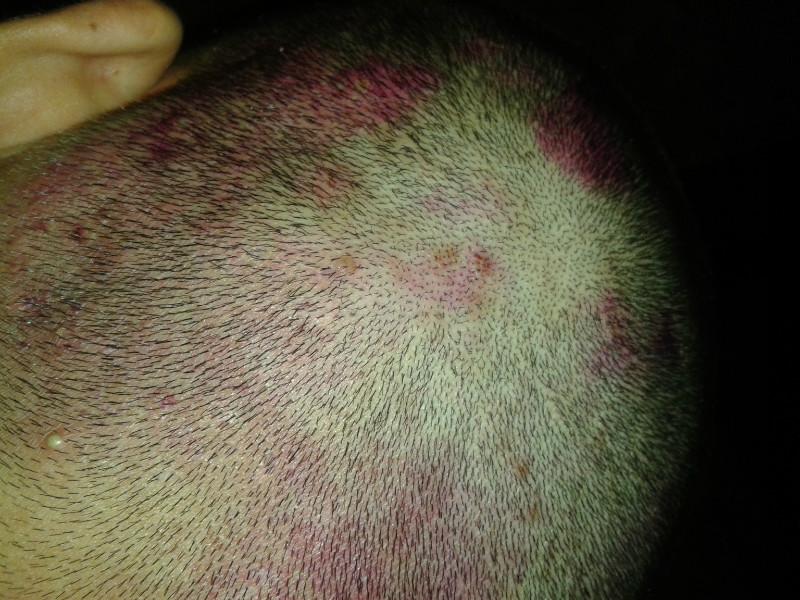 На голове под волосами красные пятна причины фото чем лечить