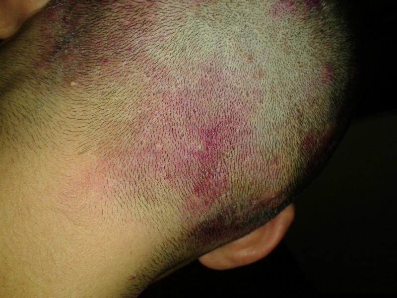 Красные пятна на голове в волосах фото