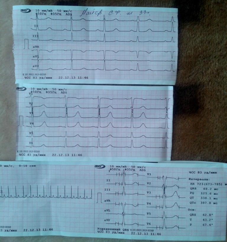 Расшифровка ЭКГ, гипоксия миокарда - Вопрос кардиологу - 03 Онлайн