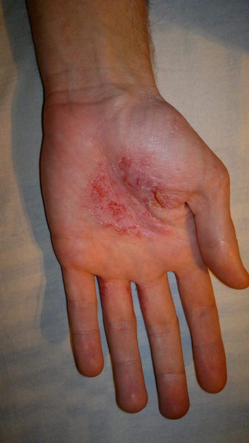 Чем вылечить онихолизис ногтей на руках