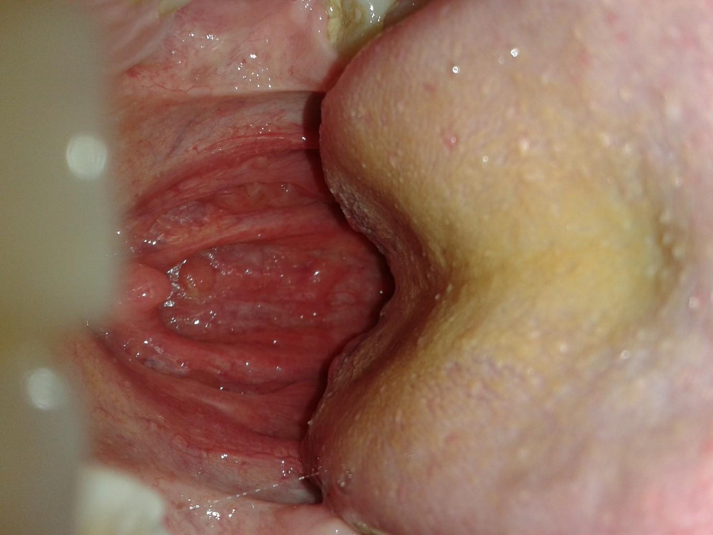 гексорал от боли в горле