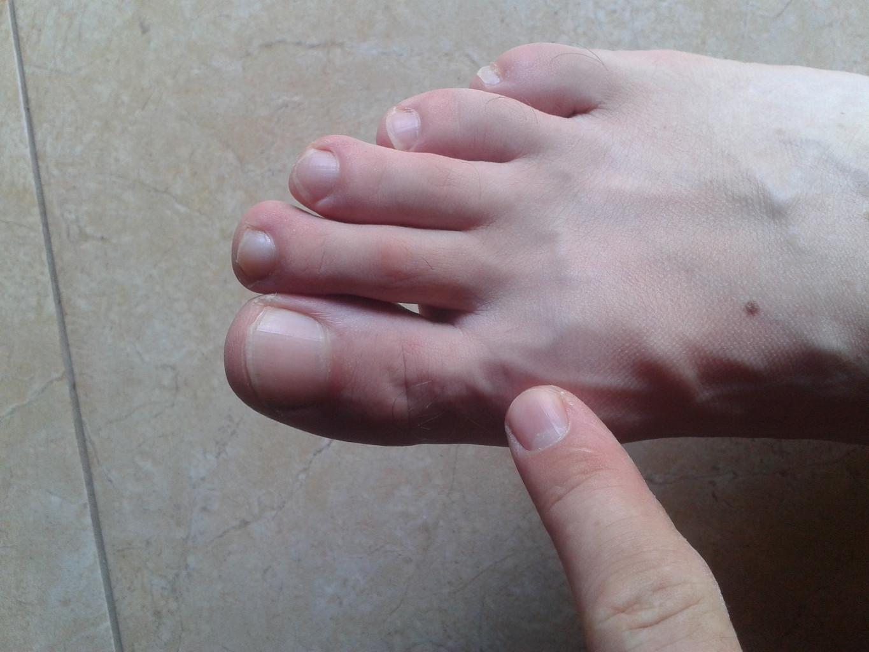 Щиколотка опухла и болит стопа при ходьбе