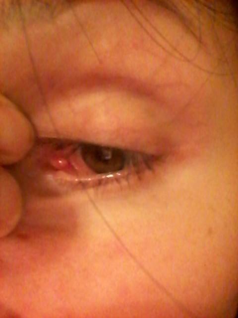 Внутренний угол глаза болит что делать 85