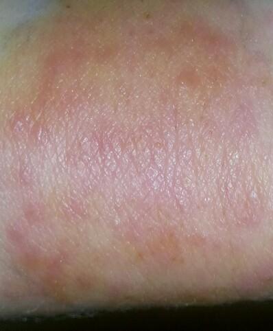чем мазать при аллергии зуд и чесание