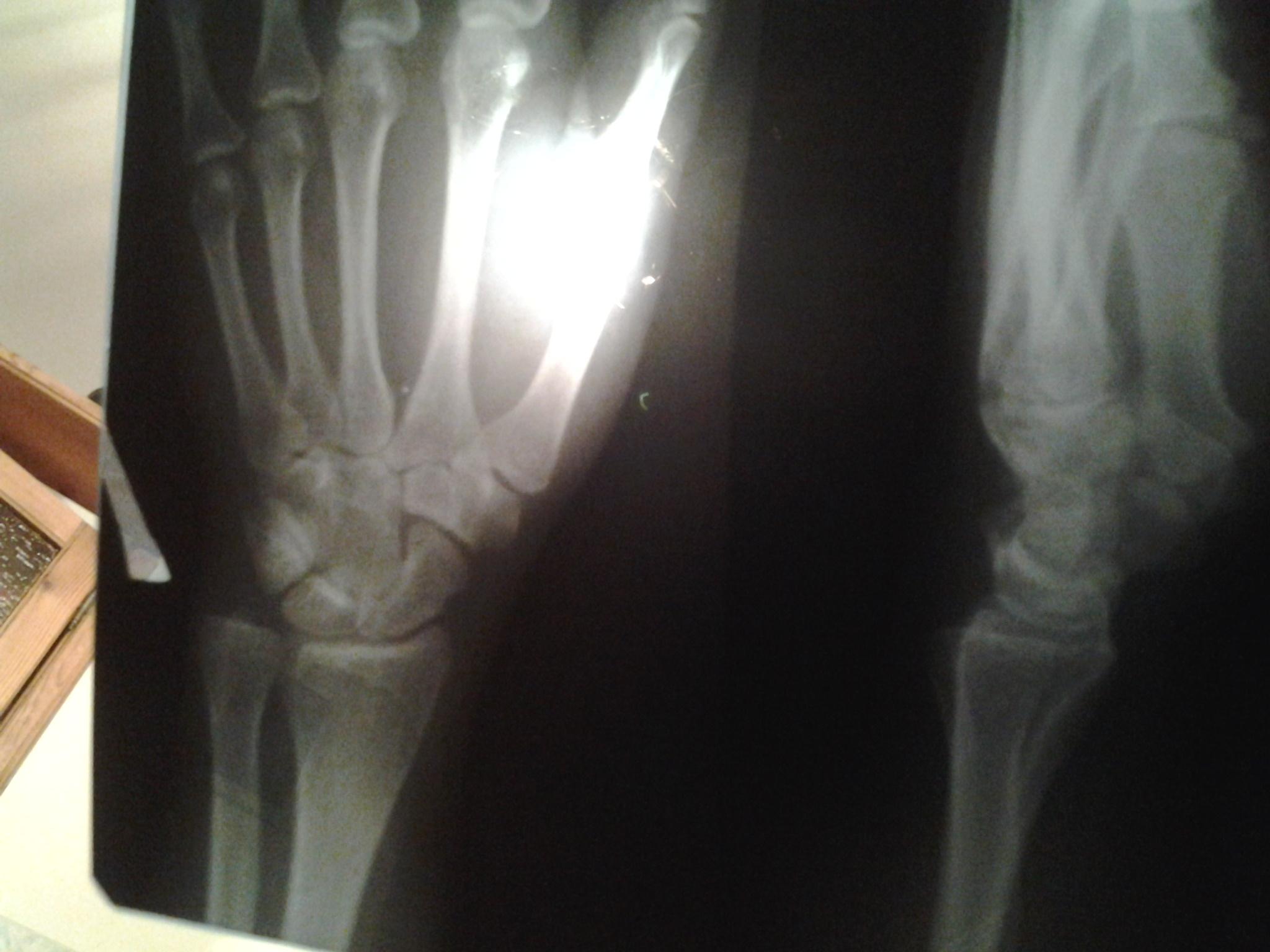 перелом нижнего конца лучевой кости фото стройной