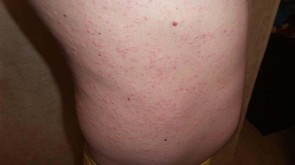 какие пятна при сифилисе