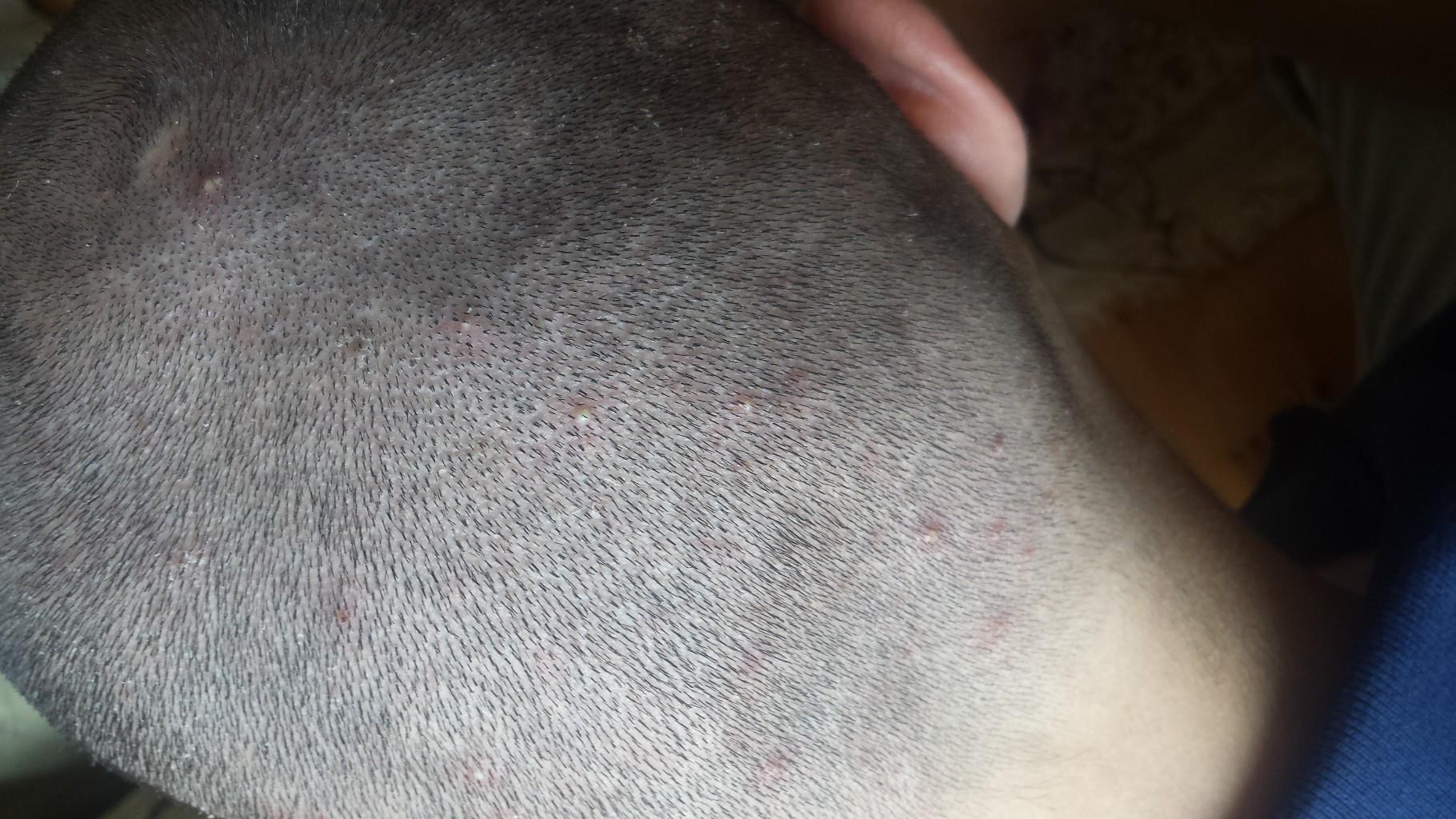 Сыпь на головке к какому врачу обратиться 107