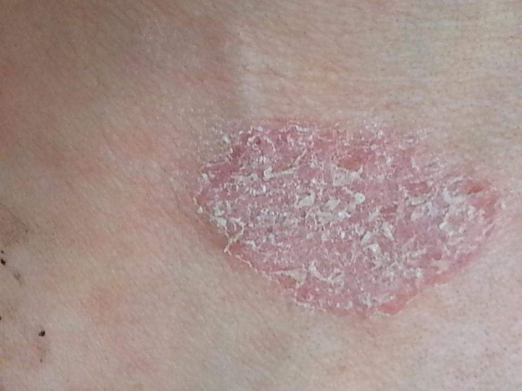 Картинки грибковое заболевание кожи