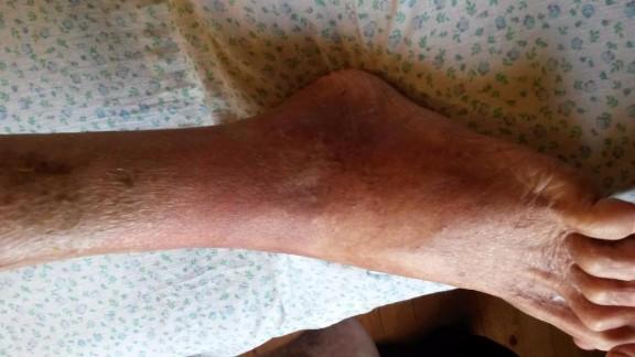 шевеление в ноге что это