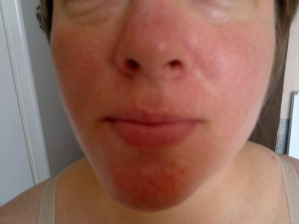 Лечение акне мази гели