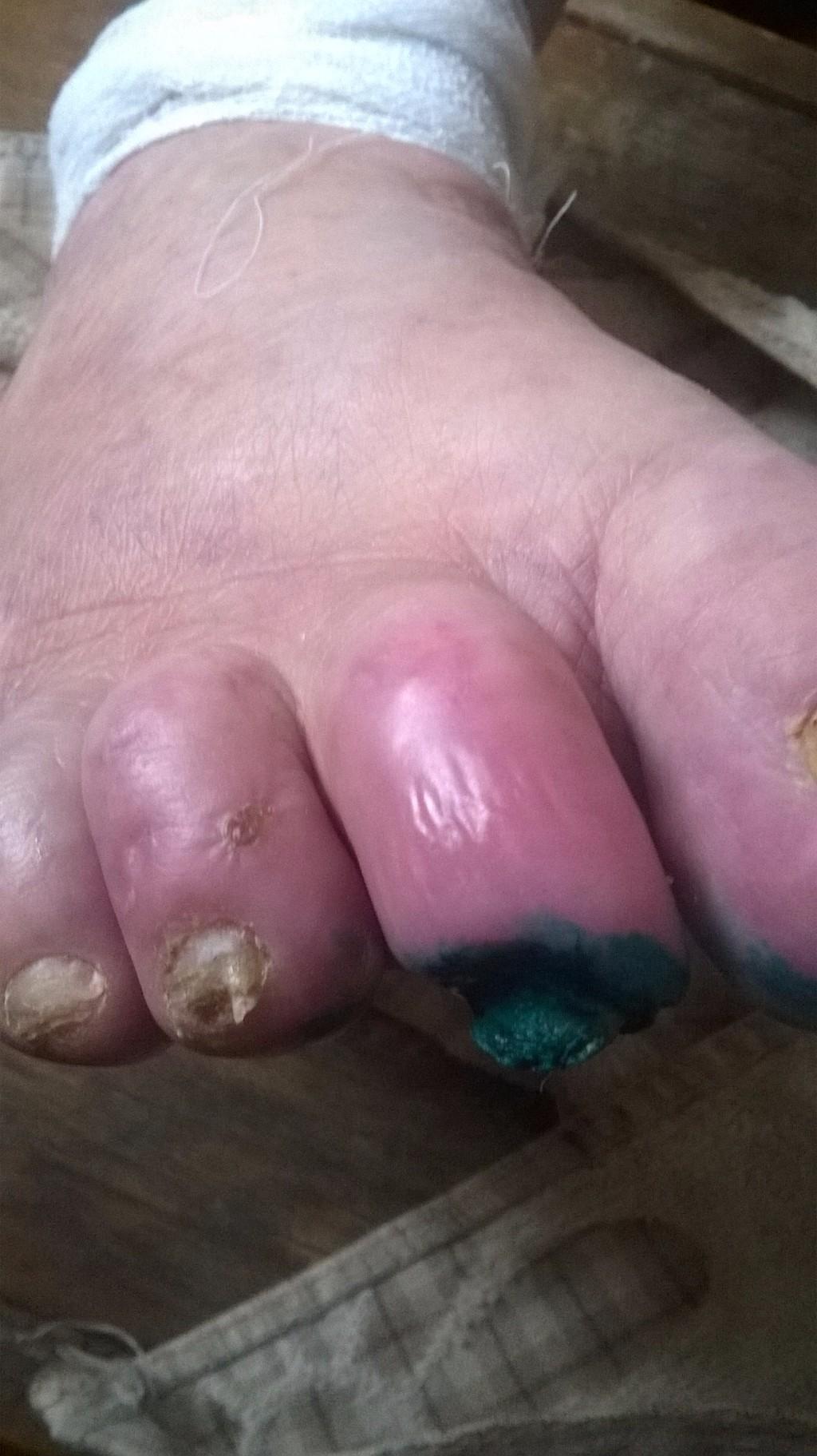Грибок ногтей на руках лечение при беременности