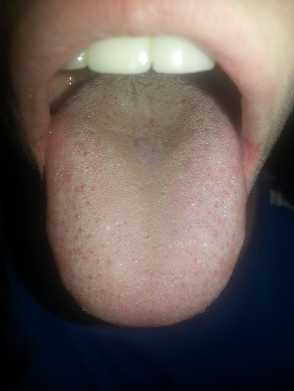 болит горло больно глотать температура 38.6