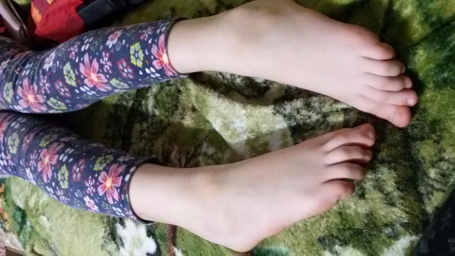 Причины возникновения и лечение косточки на ноге
