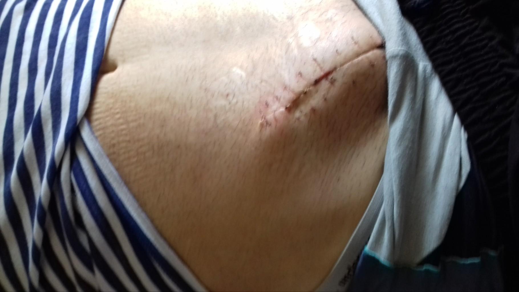 болит шов после операции паховой грыжи