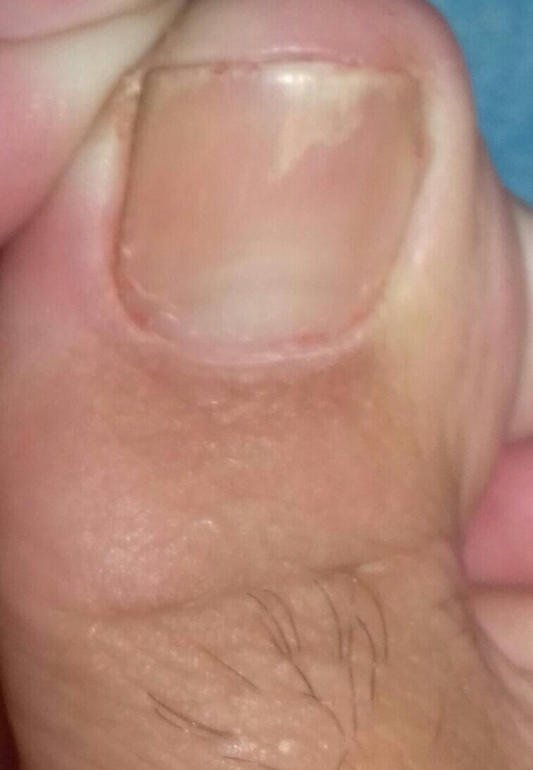 Как вылечить хронический грибок ногтей на ногах