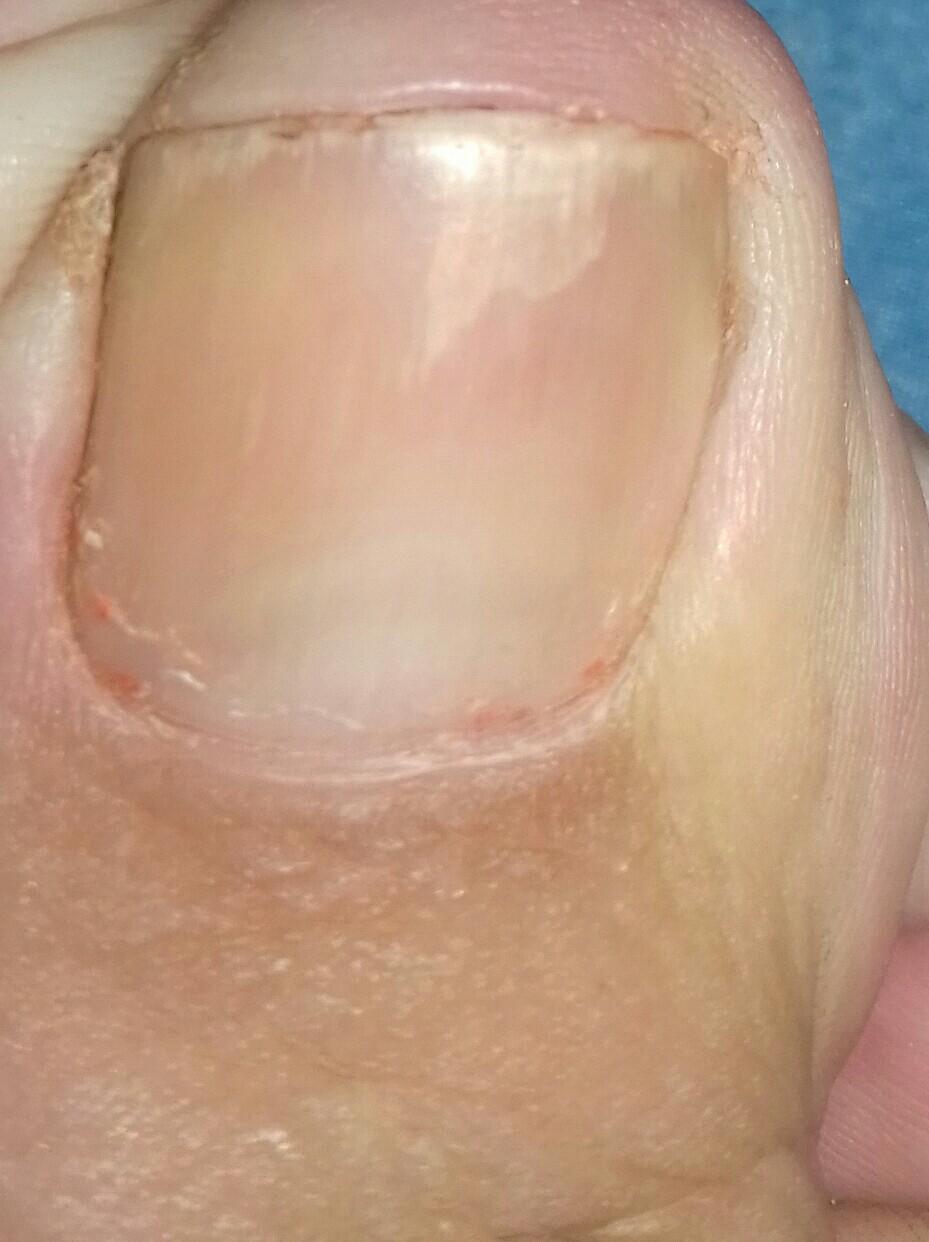 Как вылечить грибок ногтей на ногах с фото