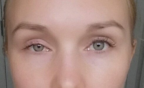 опух глаз фото