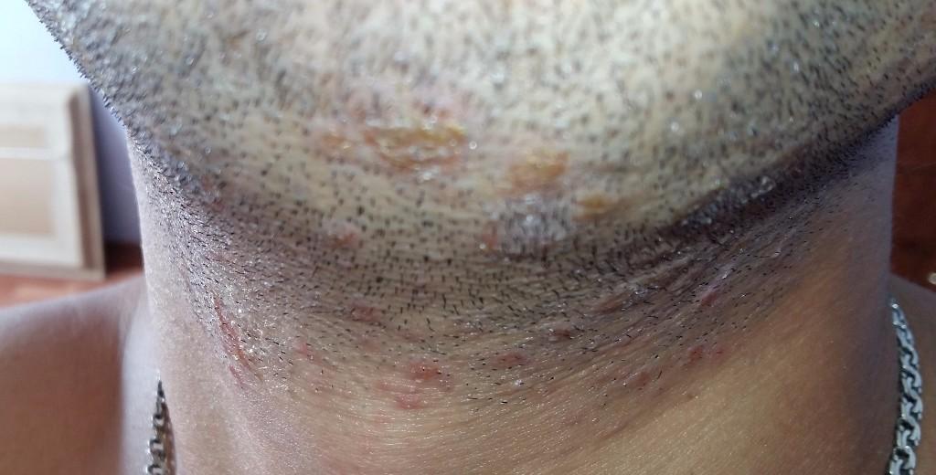Шелушится кожа на пенисе