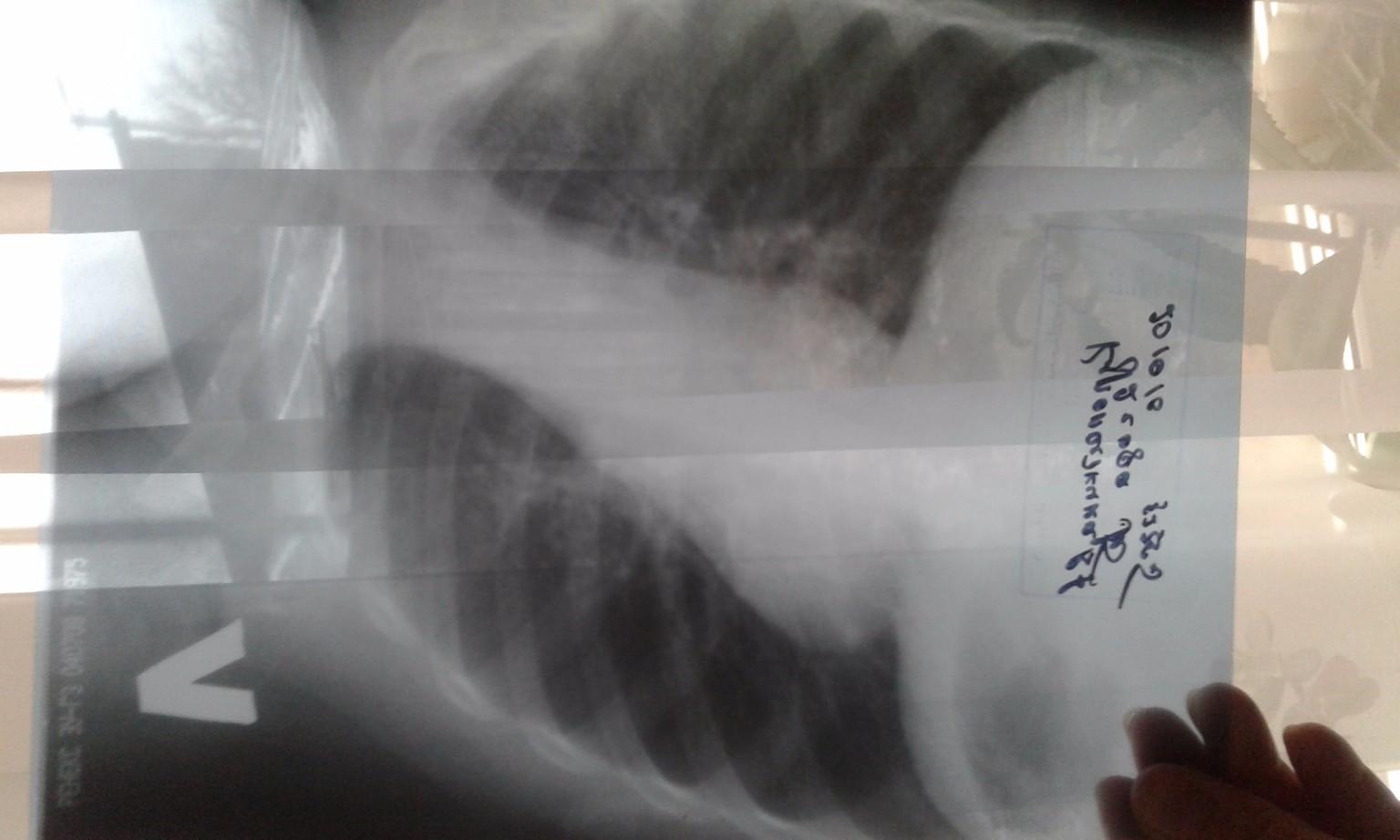 Как лечиться если кашель насморк и температура