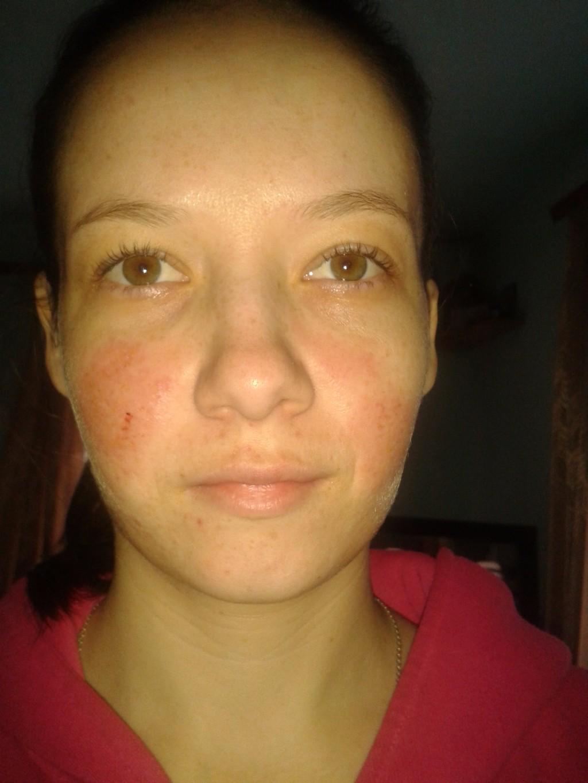Как долго проходят синяки на лице