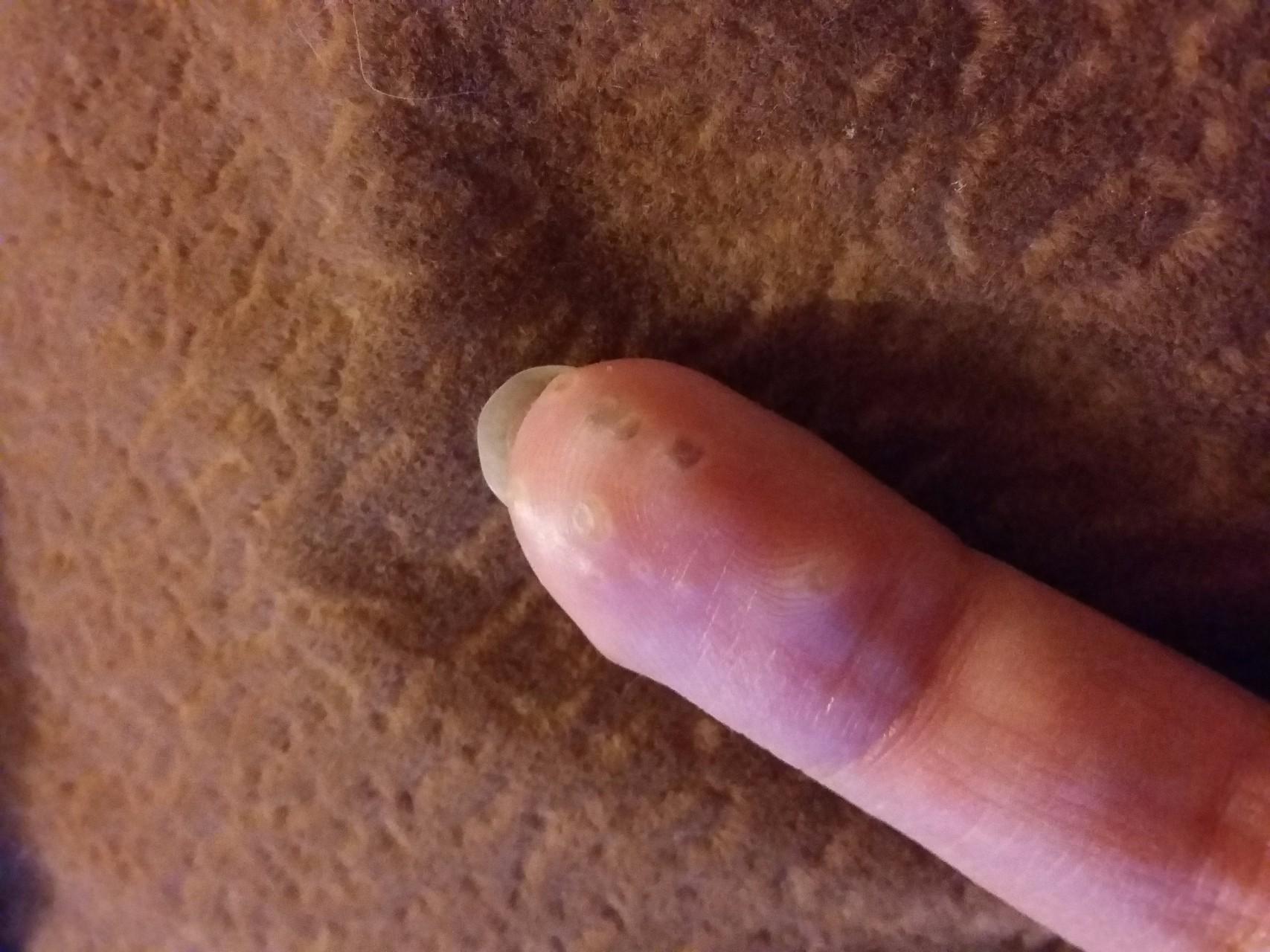 На пальцах появляются водянистые пузырьки
