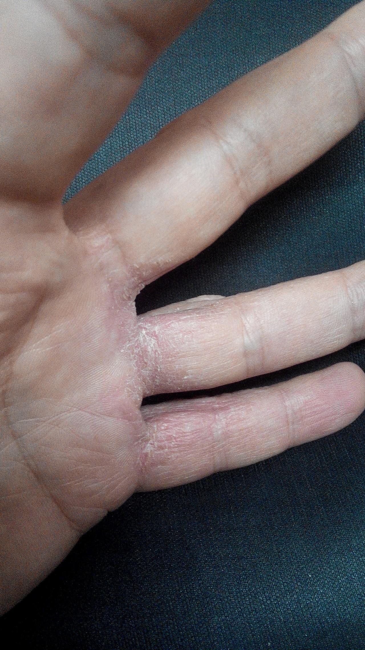 Между пальцами чешется и шелушится
