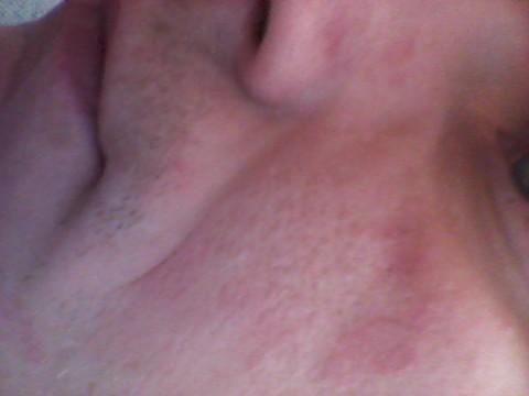 сильная аллергия на лице и отек
