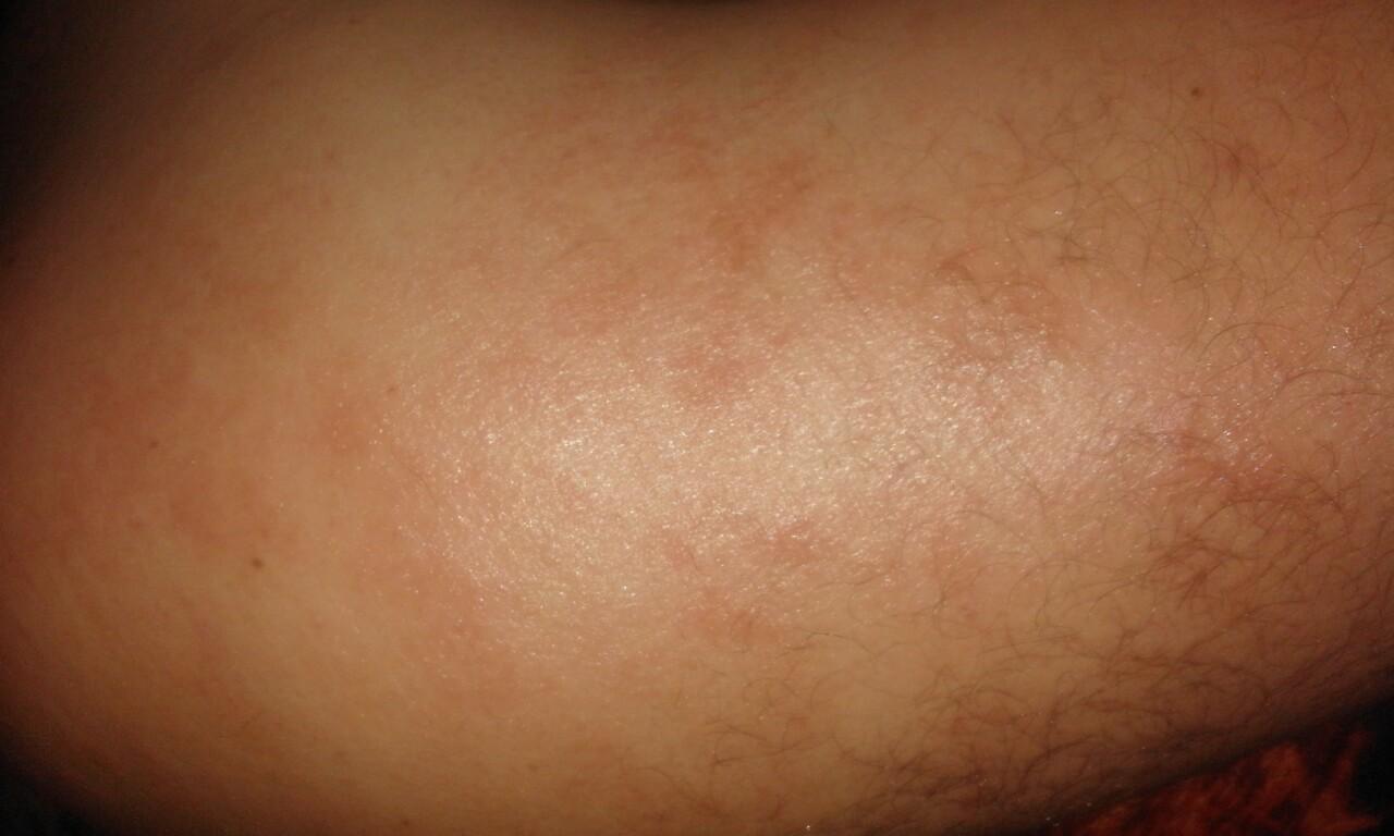 Шелушение кожи на спине человека