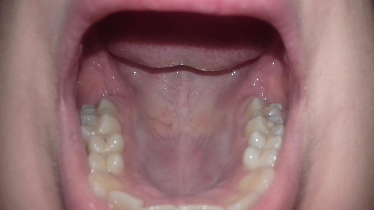 Болит нёбо во рту у ребенка 48