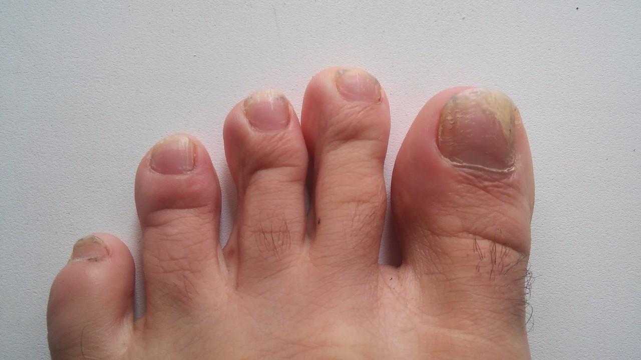 Анализ на грибок стопы и ногтей