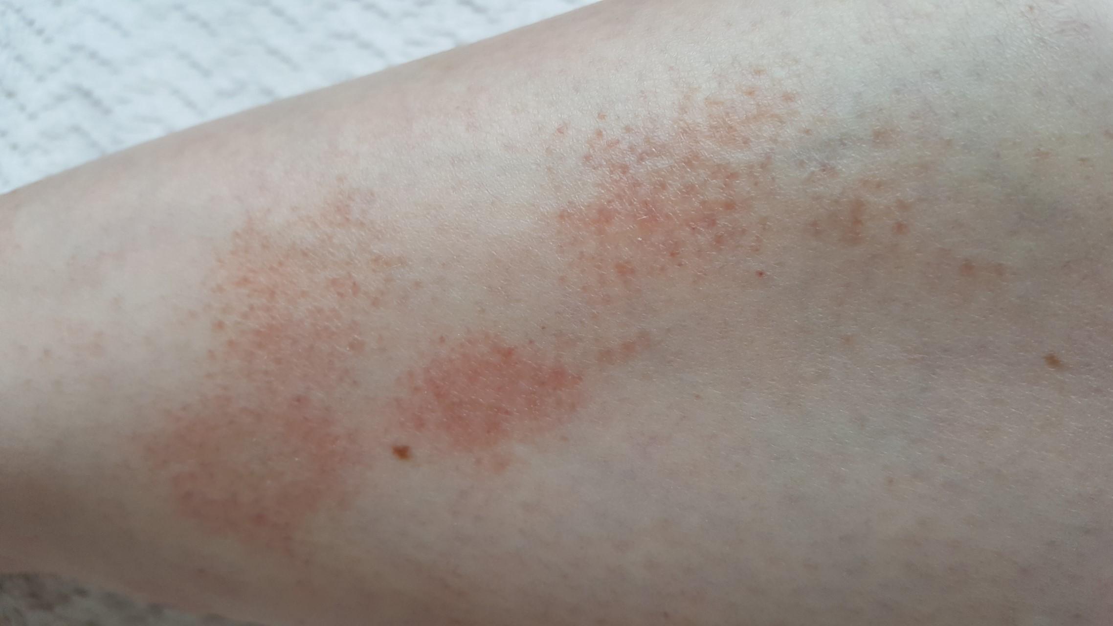 Красная сыпь на коже не чешется