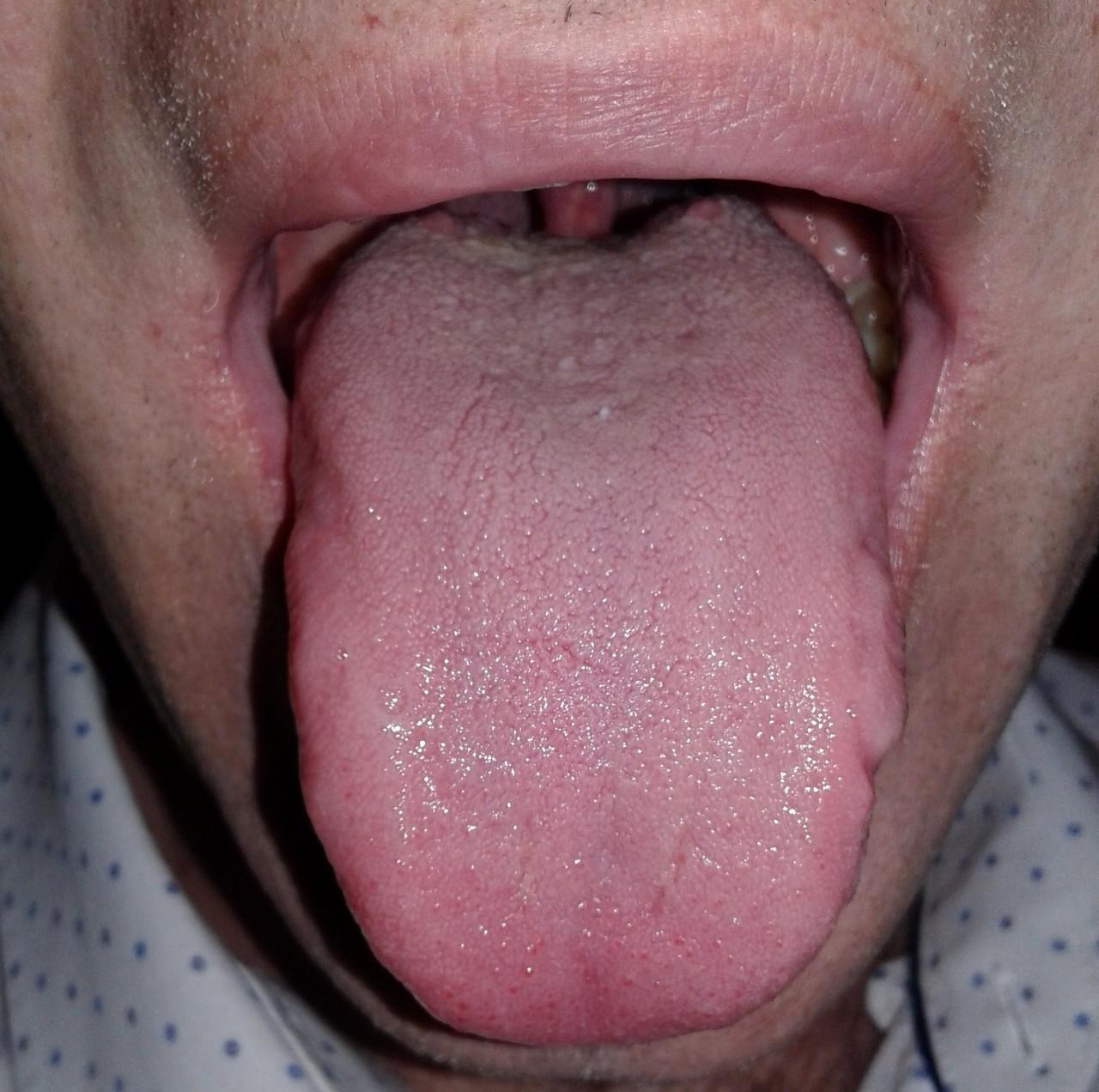 Оральный секс налет во рту