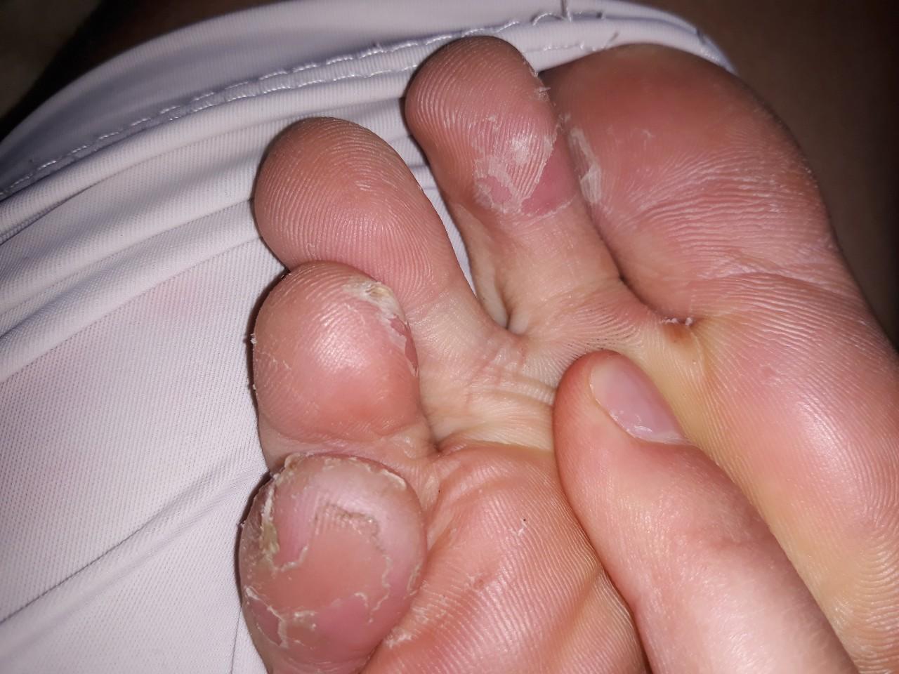 Виды грибка на ногах между пальцами