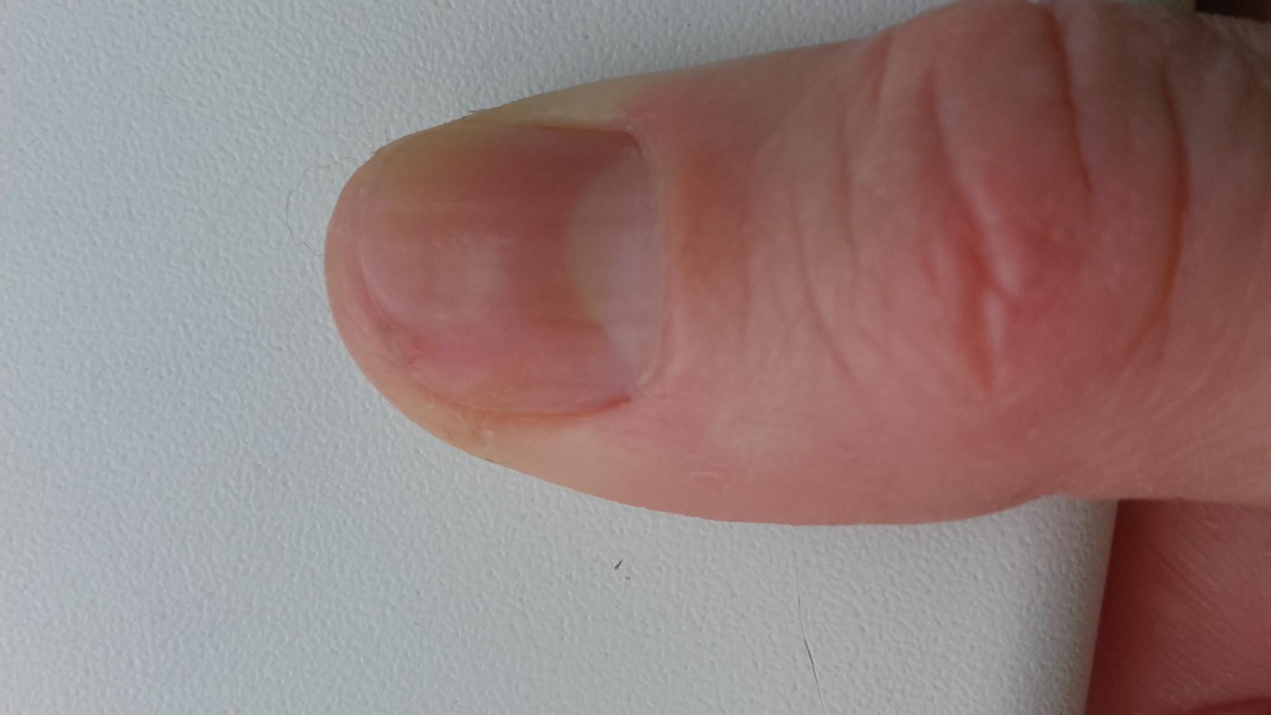 Повреждение ногтя на руке