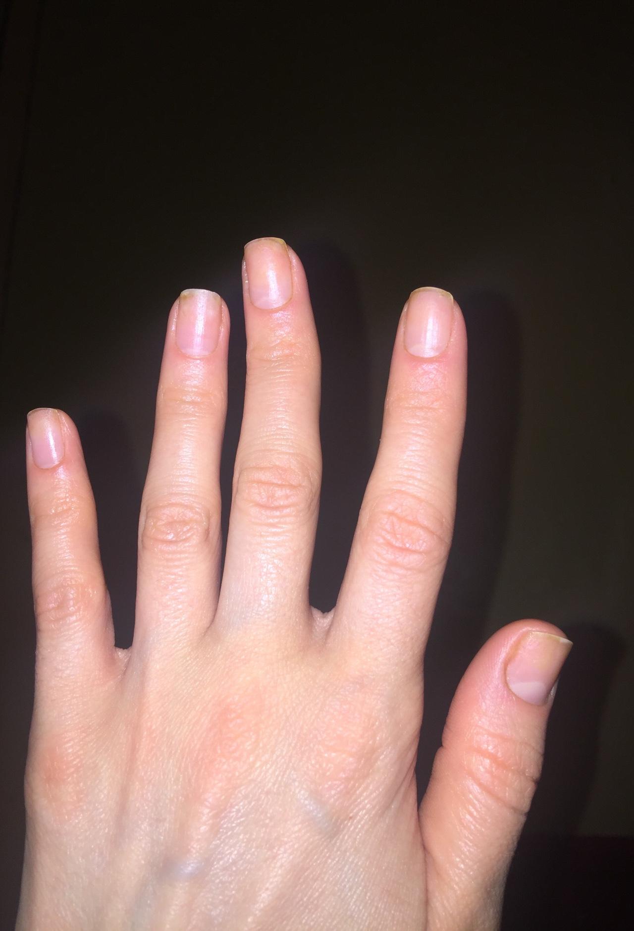 Почему ногти на руках. - m 55