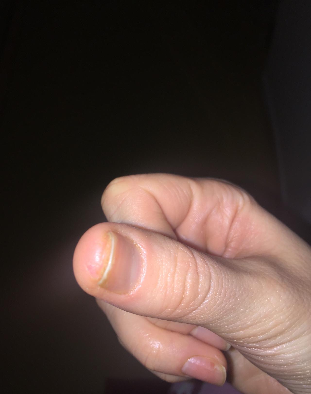 Трескается кожа под ногтем на руке