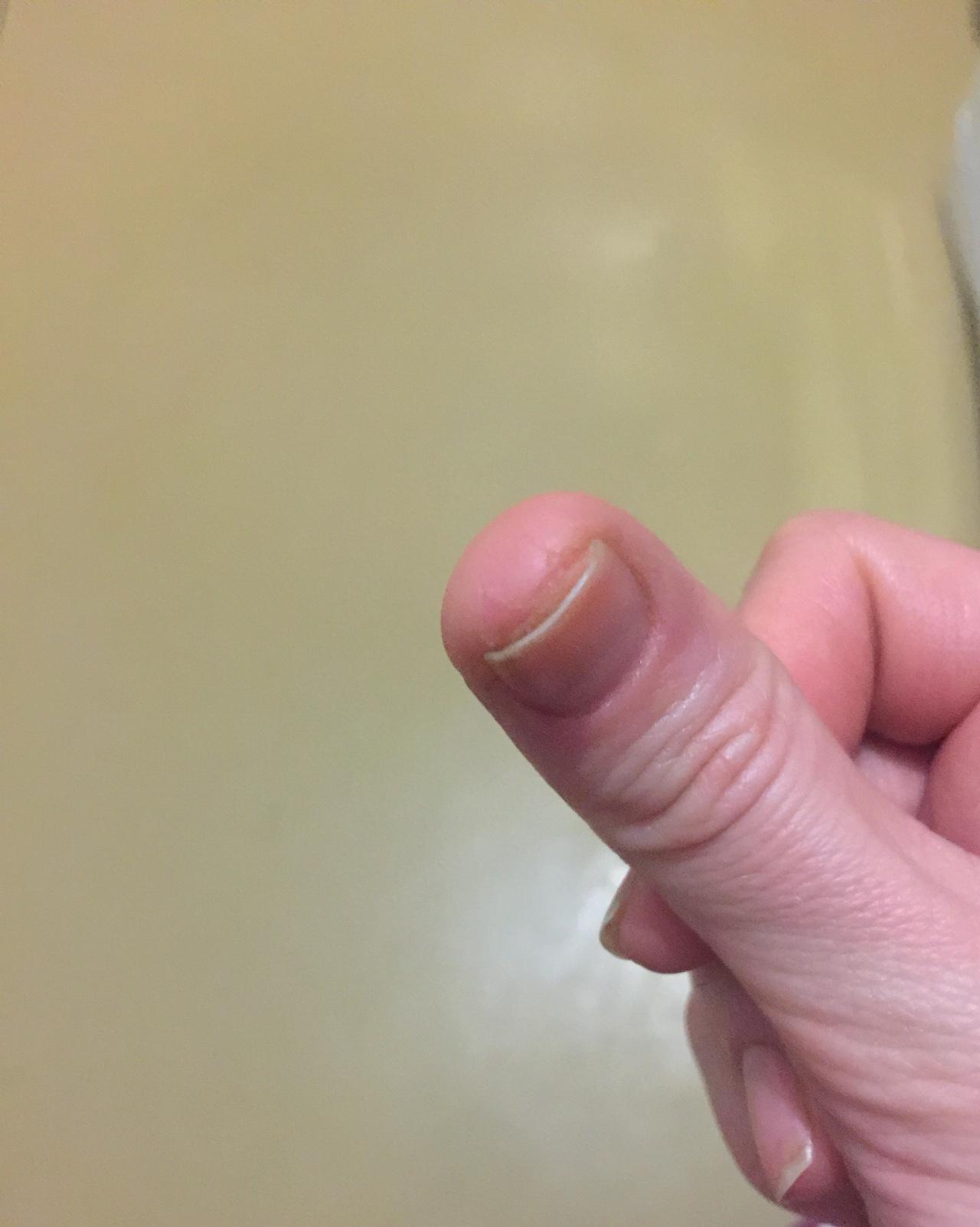 аллергия вокруг ногтя