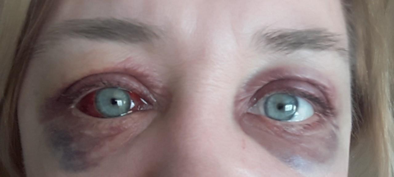 Как сделать так чтоб глаз покраснел и
