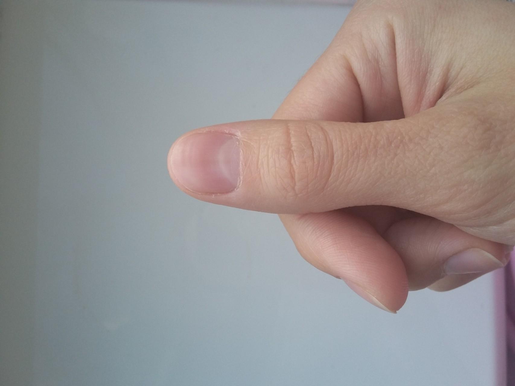Полоски на ногтях причины фото
