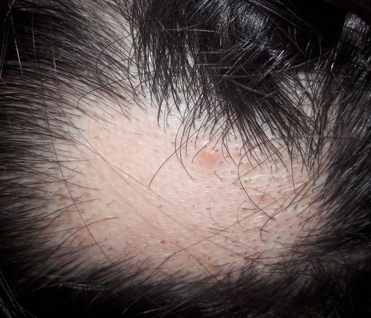 порно с волосистой части головы
