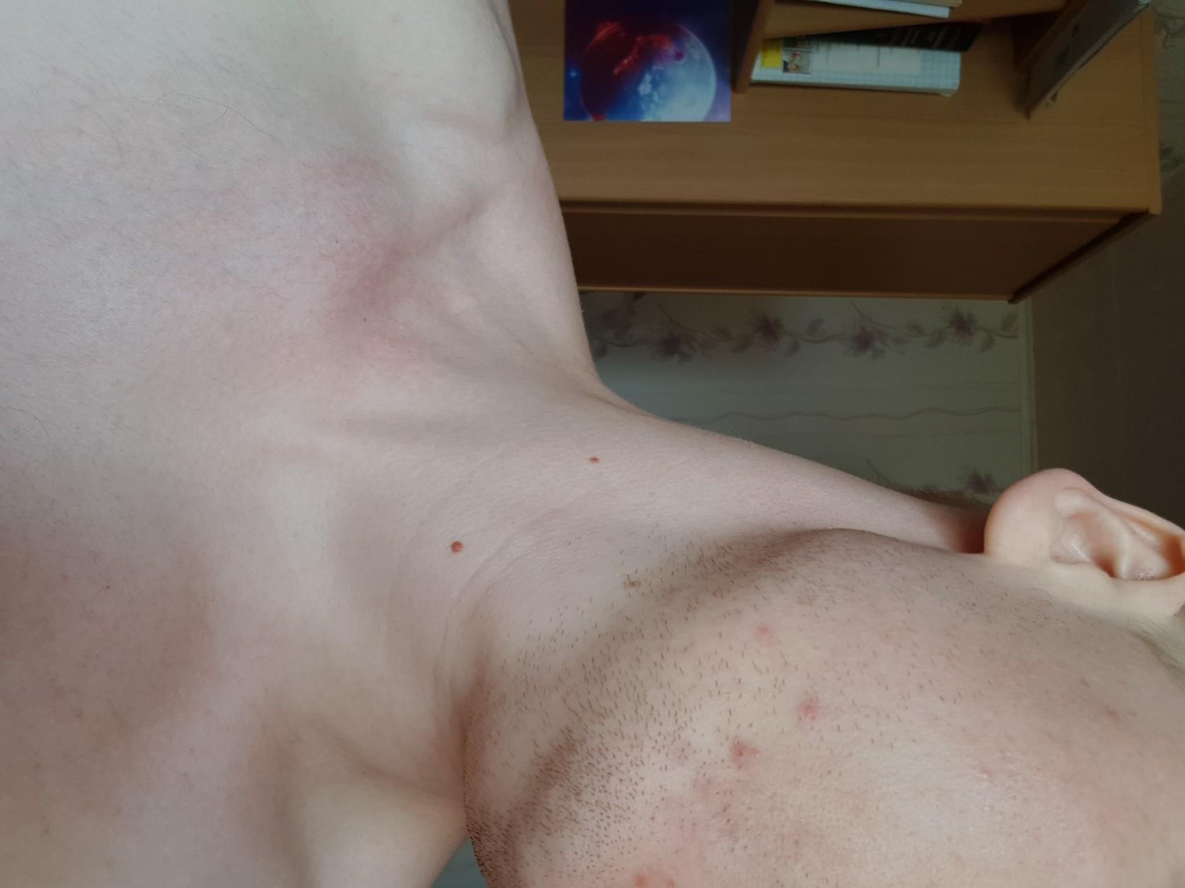 Прыщи на плечах и простатит сайт для лечения простатита